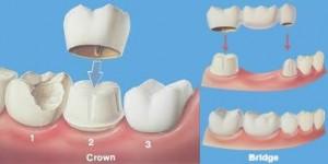 crown and bridged